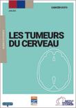 """Couverture du guide """"Les tumeurs du cerveau"""""""