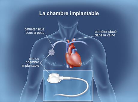 Le traitement en pratique la prise en charge de la leuc mie lympho de chronique institut - Chambre implantable percutanee ...