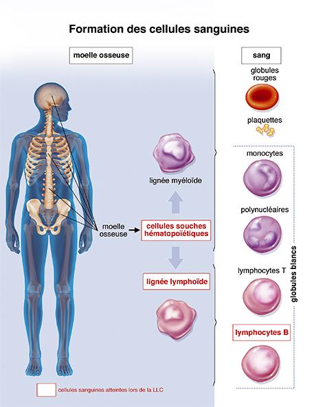 La moelle osseuse - La prise en charge de la leucémie lymphoïde ...