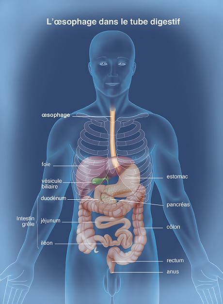 papillomavirus oesophage symptomes