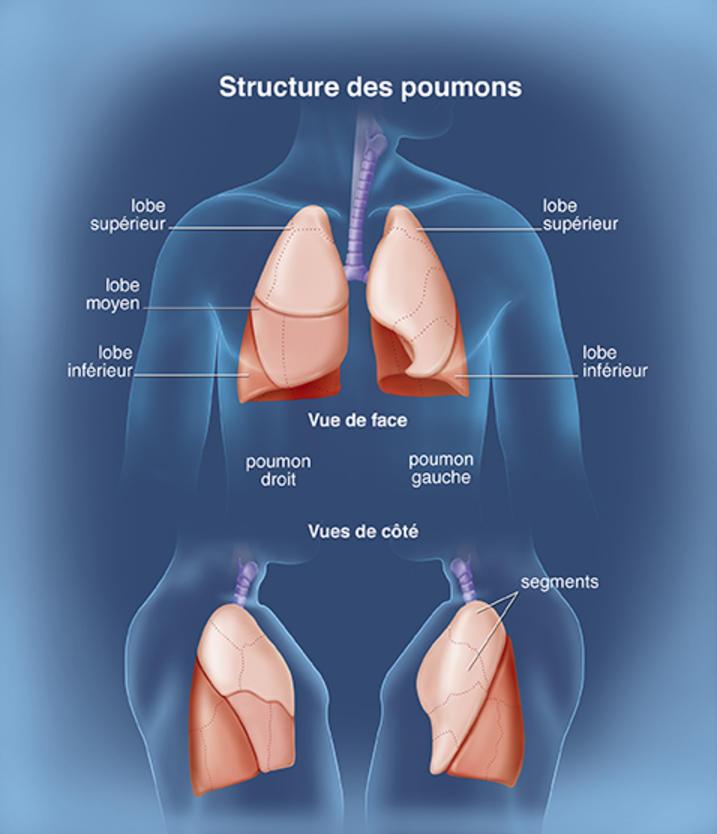 cancer des deux poumons