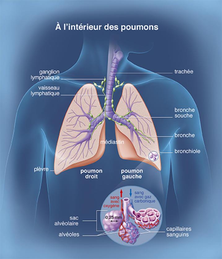 Les poumons - Cancer du poumon