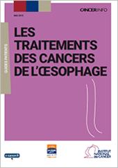 Le cancer de l'œsophage : points clés - Cancers de l'œsophage
