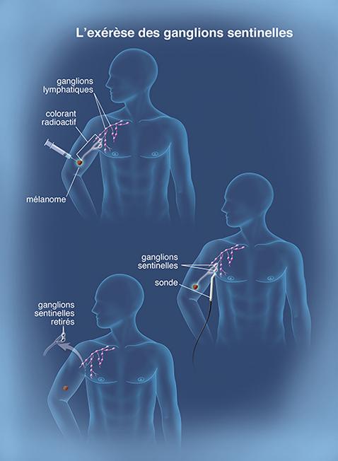 ablation du sein et des ganglions
