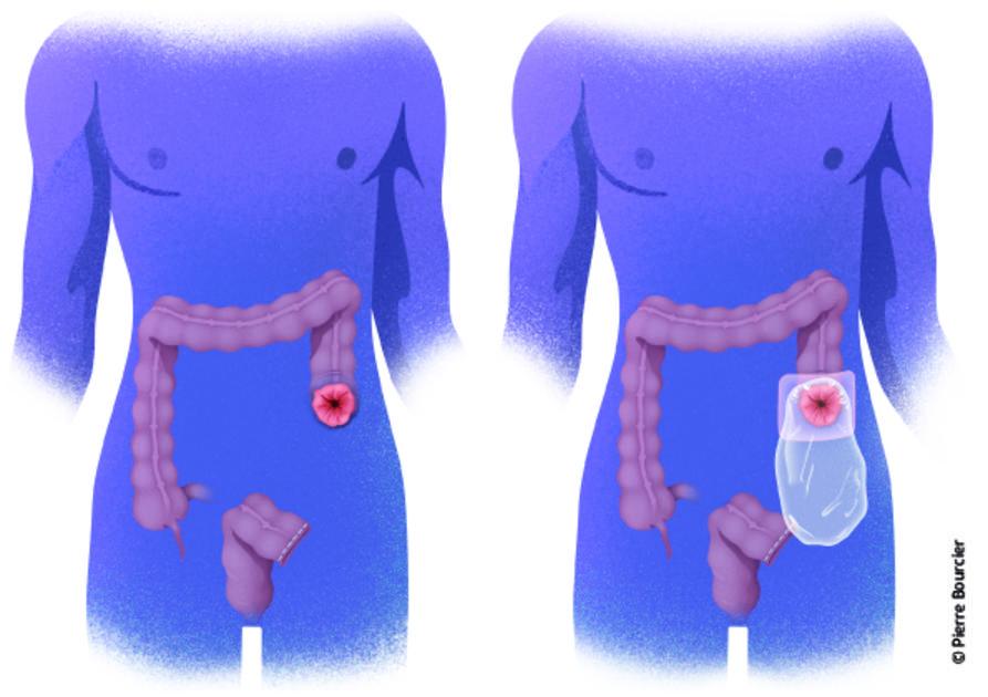 cancer colon vomissement