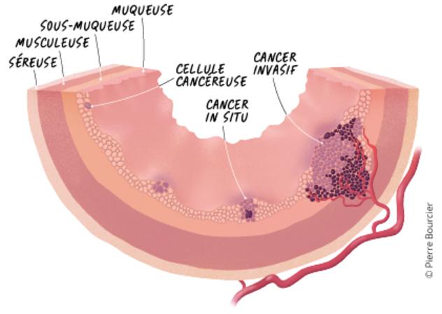 Rectal cancer lymph node spread Oxiuros dolor abdominal, Cancer colorectal stade 4 esperance de vie