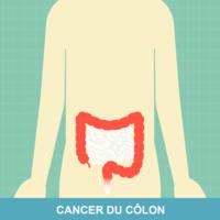 Cancer colorectal vomissement. Efecte adverse in terapia cancerului | Cancer