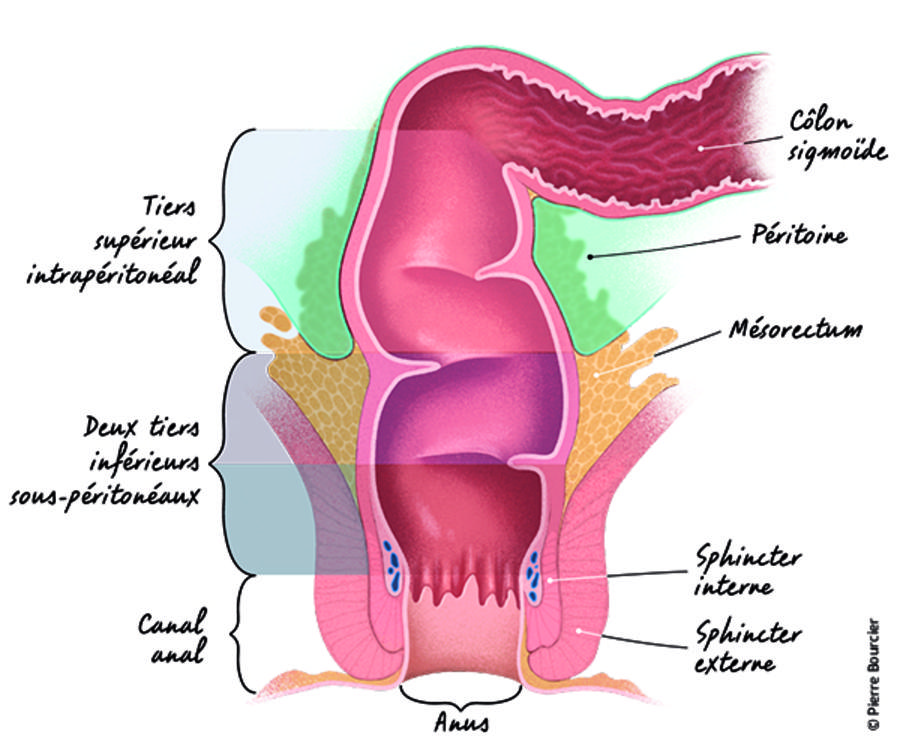 cancer rectal traitement chirurgical