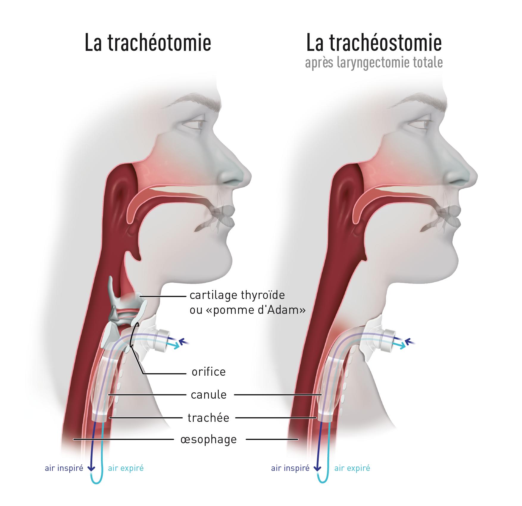 Focus : Comment vivre avec une trachéotomie ou une trachéostomie