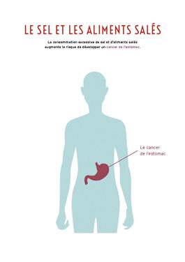 Image : sel, aliments salés et risque de cancer de l'estomac
