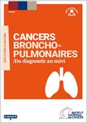 Cancers broncho-pulmonaires : Du diagnostic au suivi
