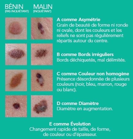 melanome pied symptomes