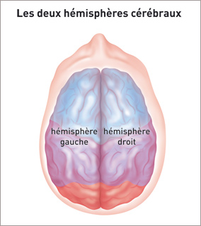 tumeur infiltrante du cerveau
