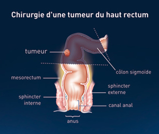 Différents Types De Chirurgie Chirurgie