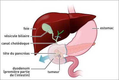 quel les symptômes du pancréas