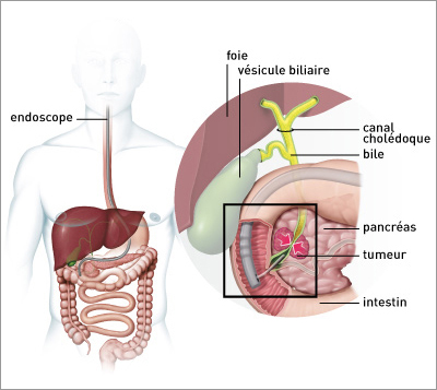 Que es cancer biliar