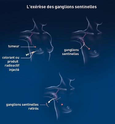 Biopsie des ganglions lymphatiques sentinelles pour le cancer du sein