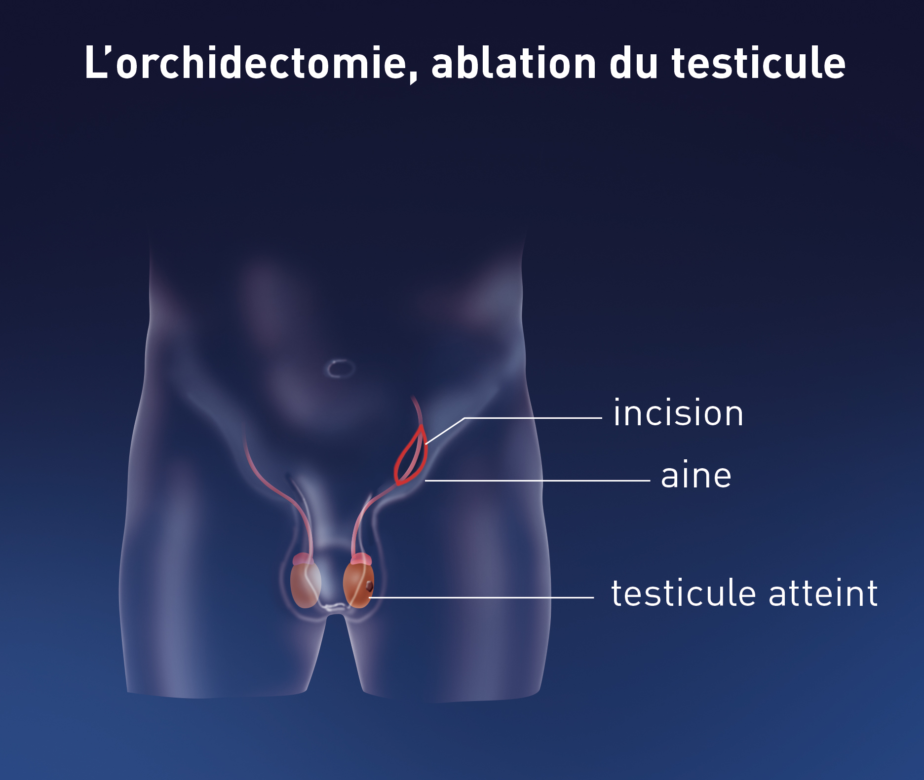 cancer du testicule traitement pdf