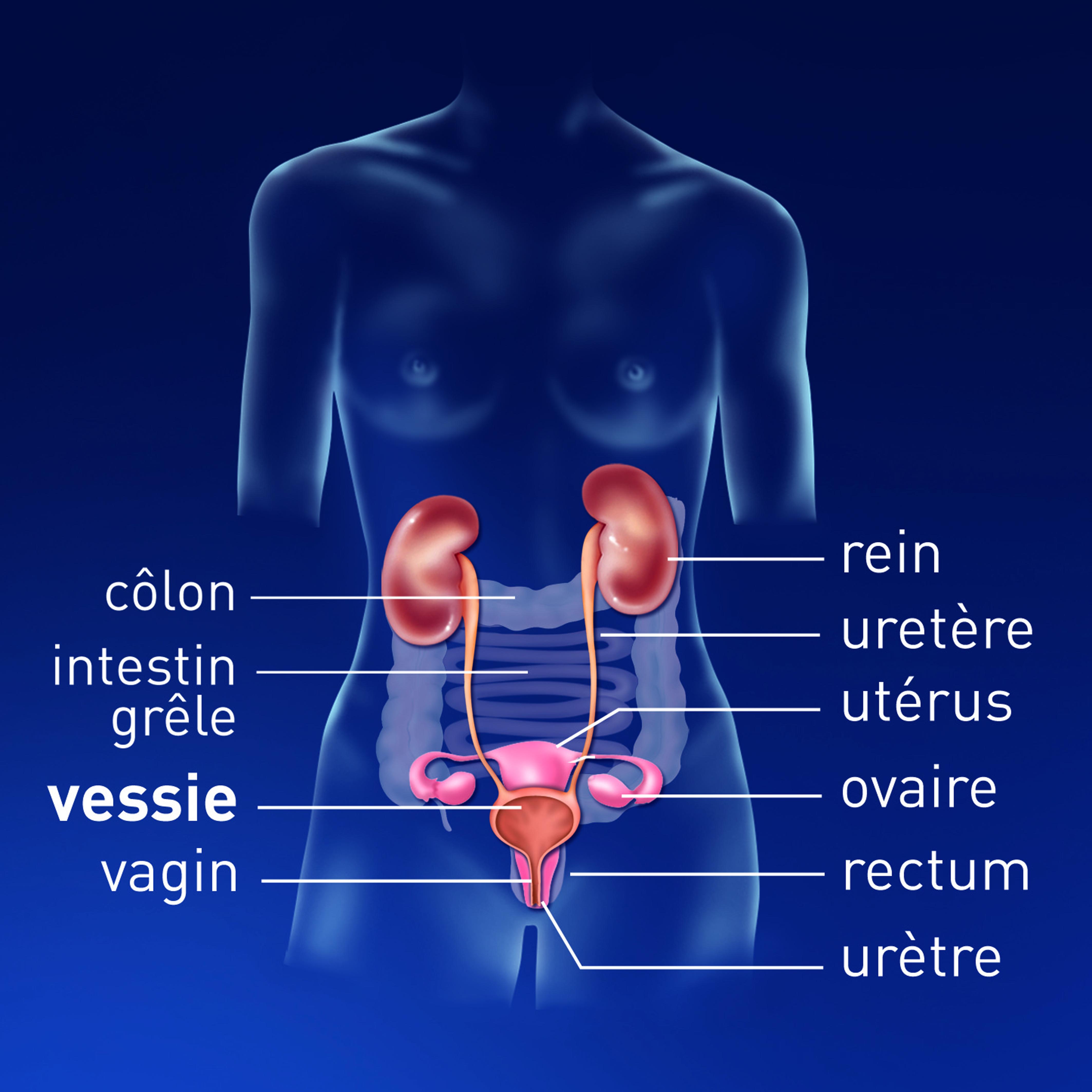 Hpv et cancer vessie. Cancer colorectal vessie. L'AHCC éradique le papillomavirus humain